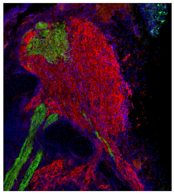 [Terminal Differentiation of Vomeronasal Sensory Neurons and GnRH-1 Neuronal Migration, from New Models to New Stories]