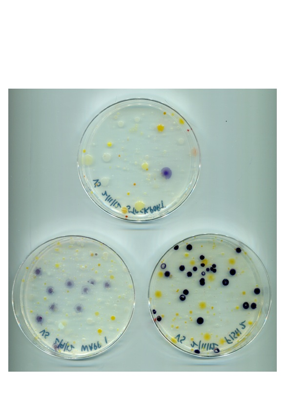 [Hudson Valley Microbial Defenses: A Case for Violacein]